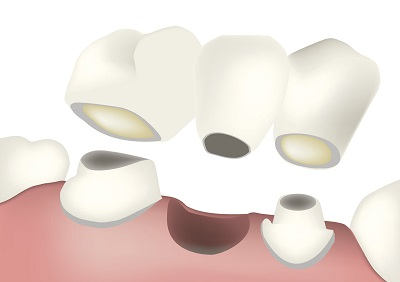 A diagram of how a dental bridge works.