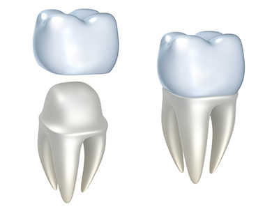How to Pick the Perfect Dental Crown