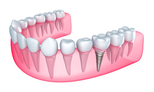 Who is the Best Candidate for Implant Surgery?